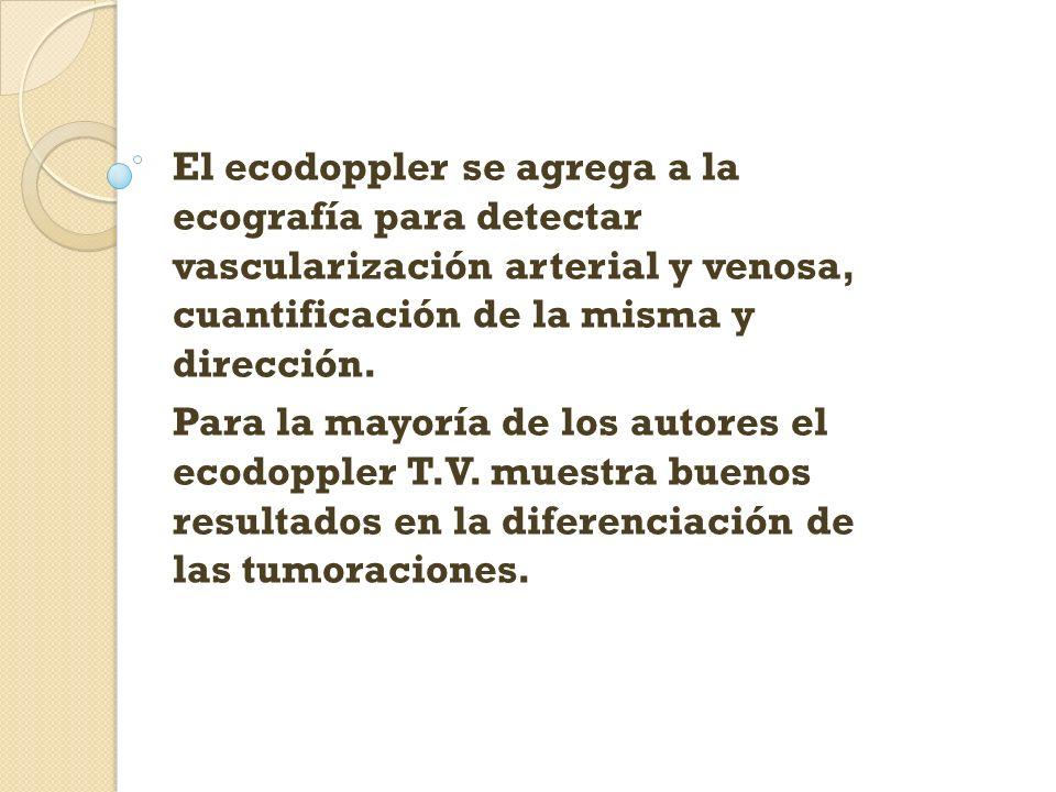 El ecodoppler se agrega a la ecografía para detectar vascularización arterial y venosa, cuantificación de la misma y dirección.