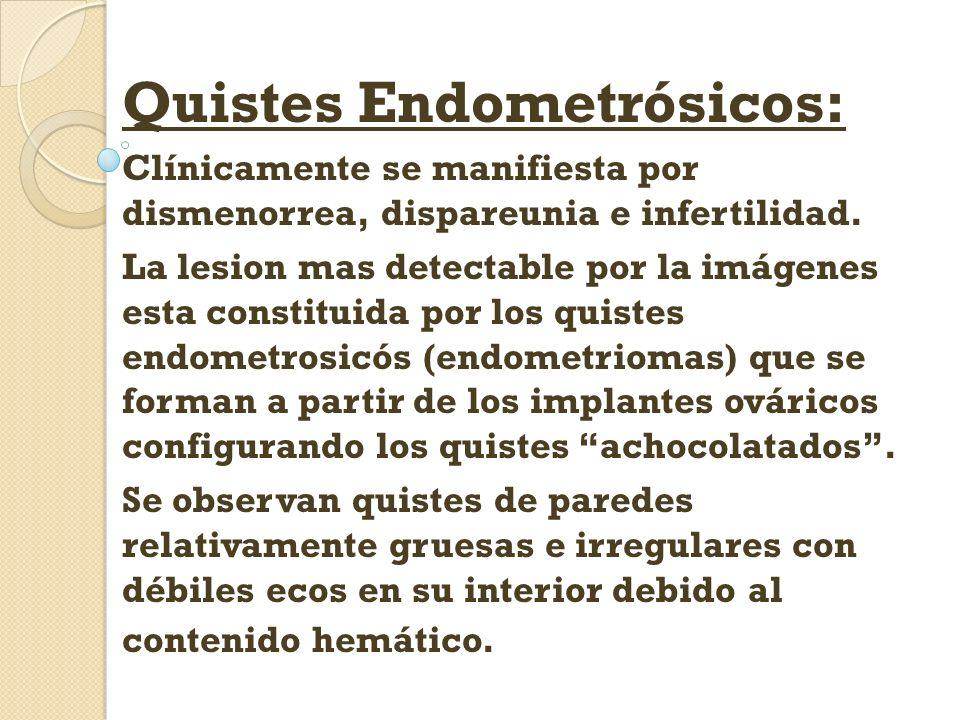 Quistes Endometrósicos: