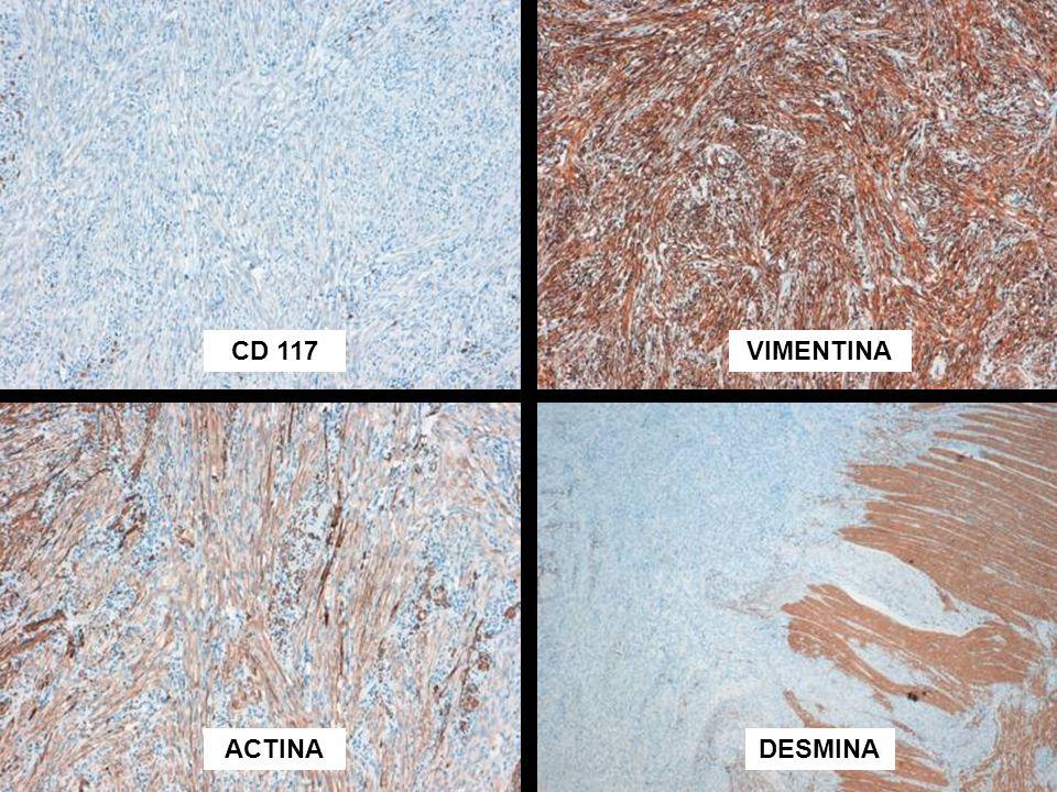 CD 117 VIMENTINA ACTINA DESMINA