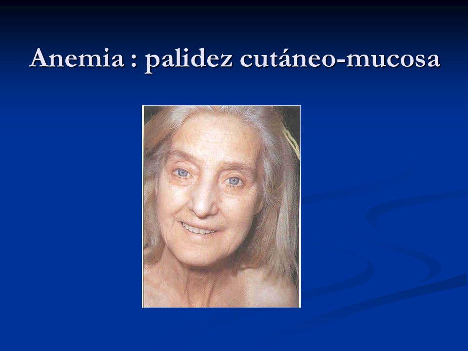 Anemia : palidez cutáneo-mucosa