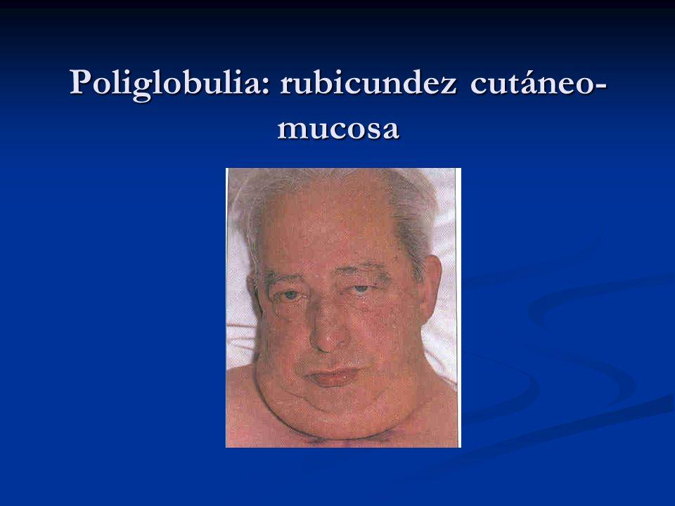 Poliglobulia: rubicundez cutáneo-mucosa