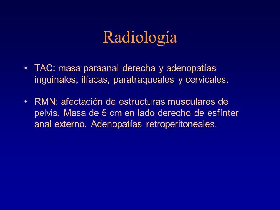 Radiología TAC: masa paraanal derecha y adenopatías inguinales, ilíacas, paratraqueales y cervicales.