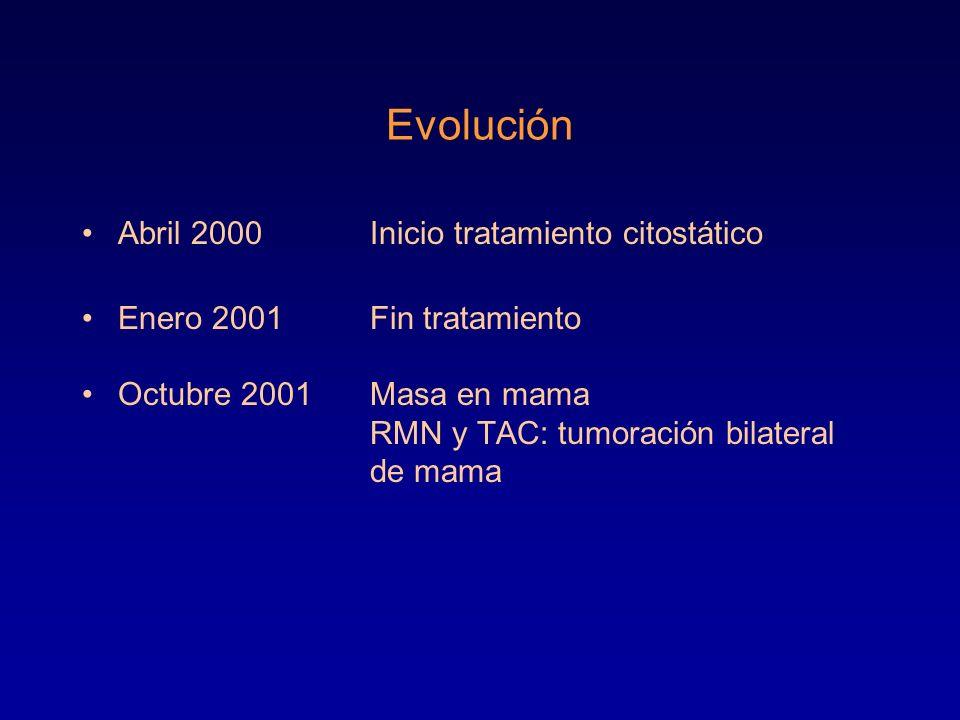 Evolución Abril 2000 Inicio tratamiento citostático