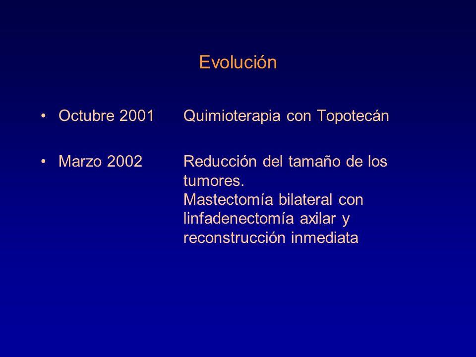 Evolución Octubre 2001 Quimioterapia con Topotecán