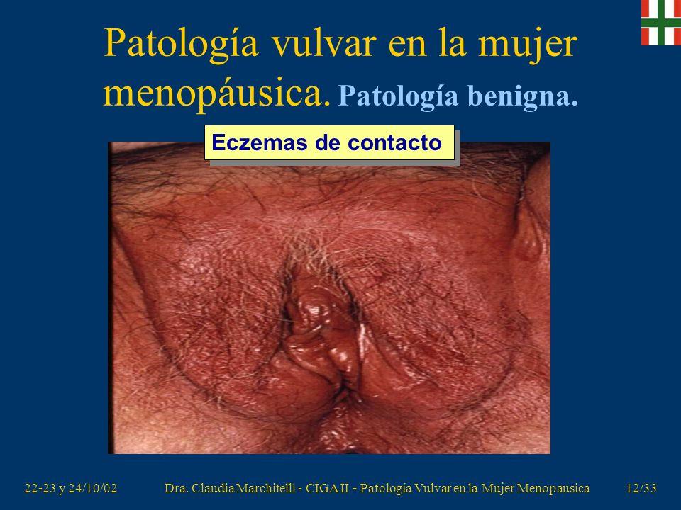 Patología vulvar en la mujer menopáusica. Patología benigna.