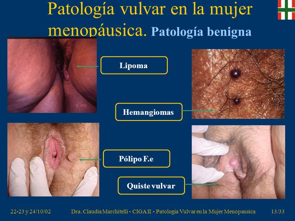 Patología vulvar en la mujer menopáusica. Patología benigna