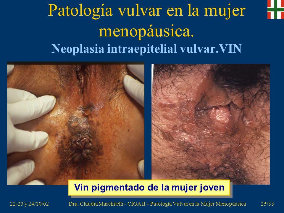 NEOPLASIA VAGINAL INTRAEPITELIAL VaIN - aepccorg