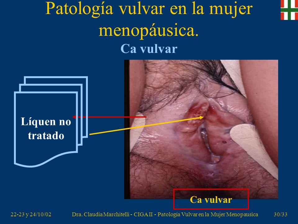 Patología vulvar en la mujer menopáusica. Ca vulvar