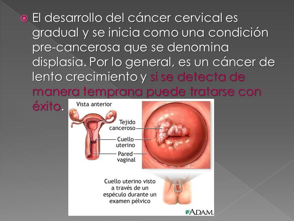 El desarrollo del cáncer cervical es gradual y se inicia como una condición pre-cancerosa que se denomina displasia.