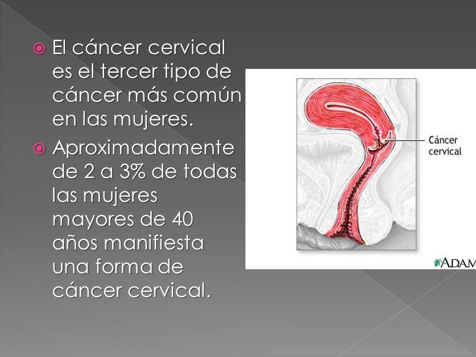 El cáncer cervical es el tercer tipo de cáncer más común en las mujeres.