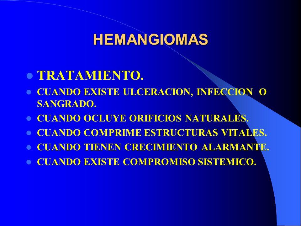 HEMANGIOMAS TRATAMIENTO.