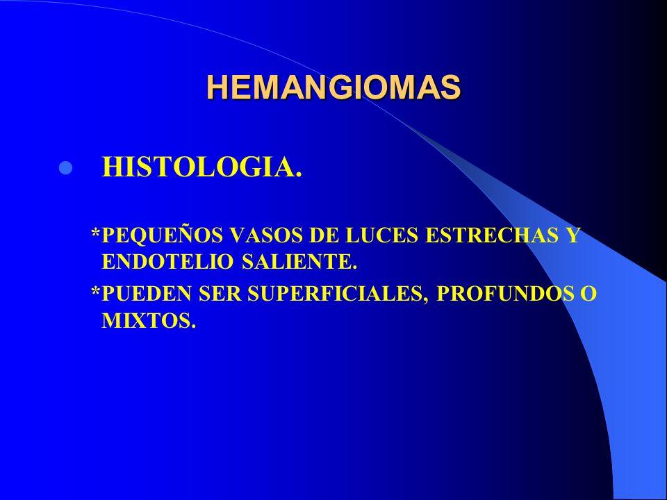 HEMANGIOMAS HISTOLOGIA.