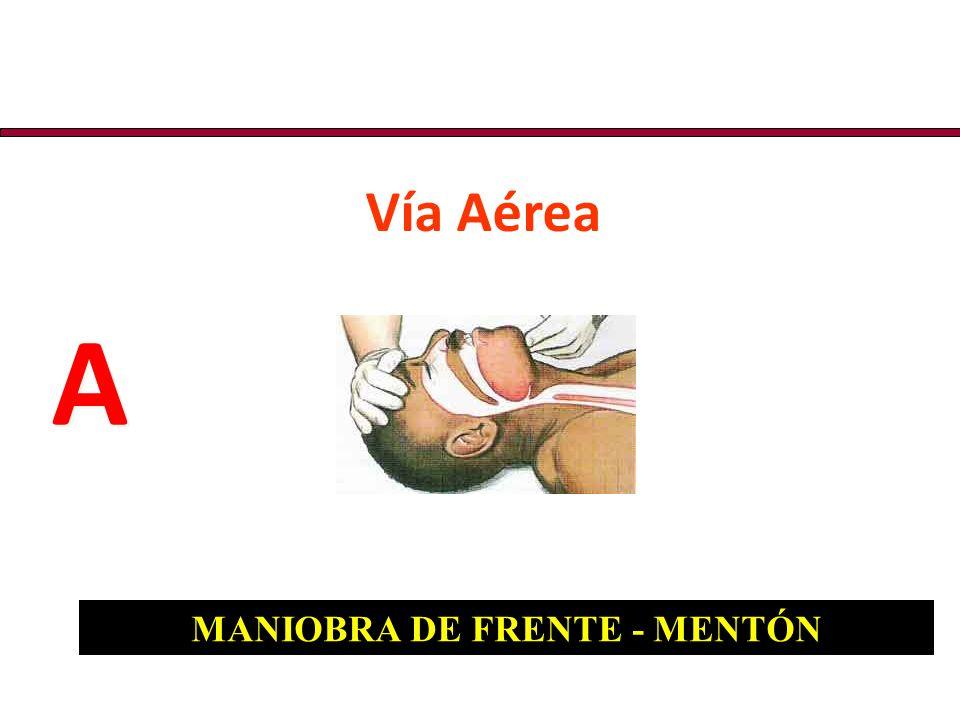 MANIOBRA DE FRENTE - MENTÓN