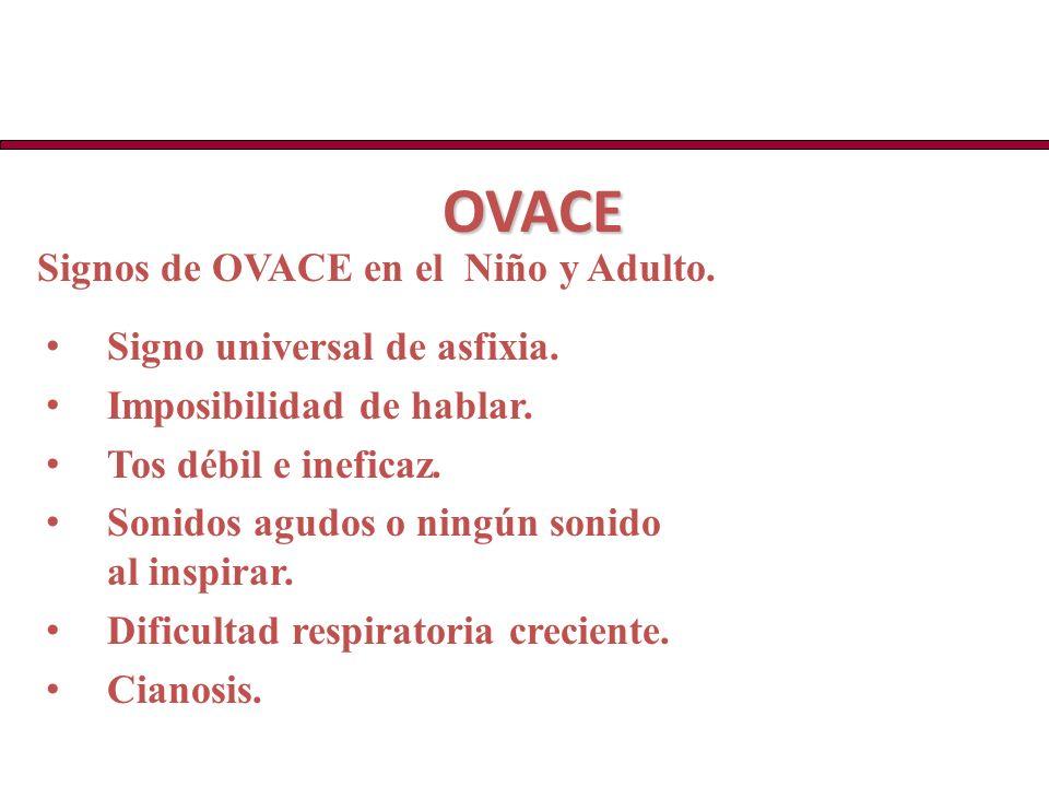 OVACE Signos de OVACE en el Niño y Adulto. Signo universal de asfixia.
