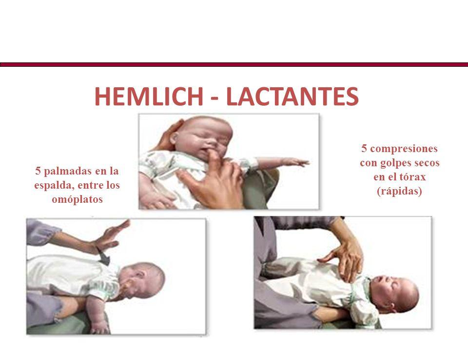 HEMLICH - LACTANTES 5 compresiones con golpes secos en el tórax (rápidas) 5 palmadas en la espalda, entre los omóplatos.