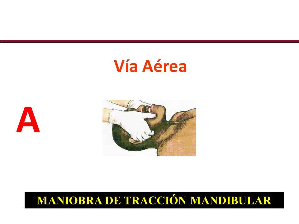 MANIOBRA DE TRACCIÓN MANDIBULAR