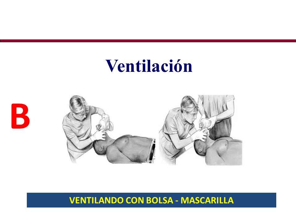 VENTILANDO CON BOLSA - MASCARILLA