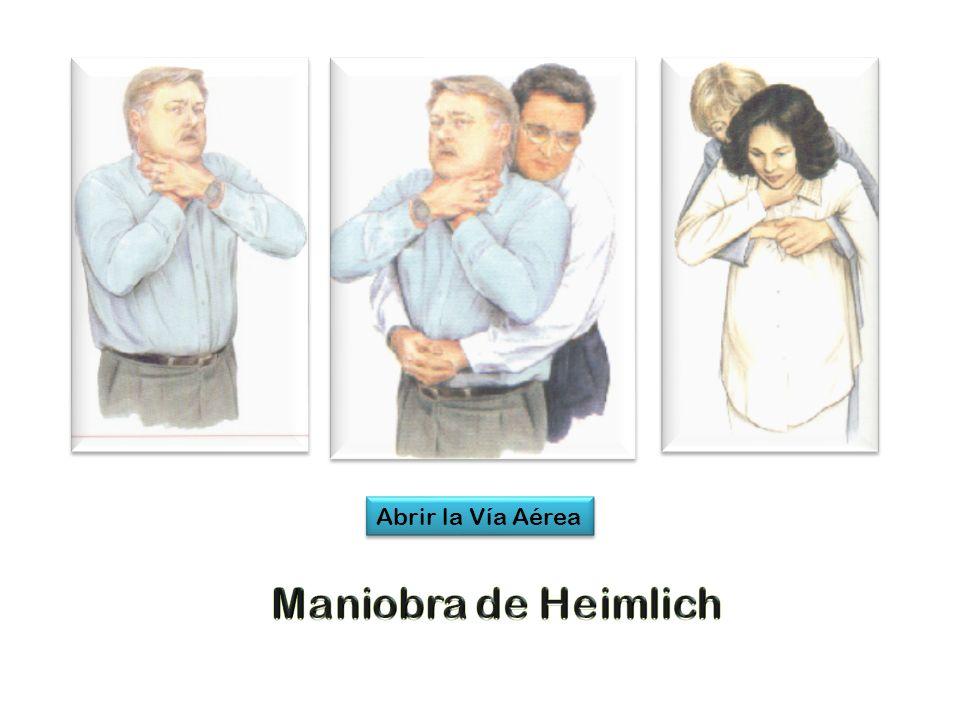 Abrir la Vía Aérea Maniobra de Heimlich