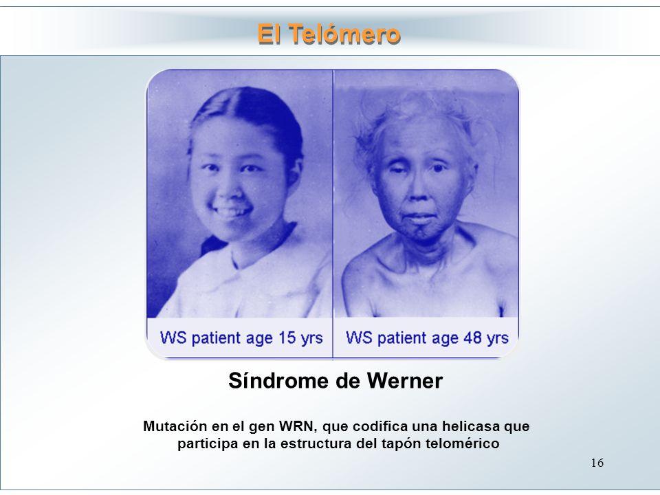 Síndrome de Werner El Telómero