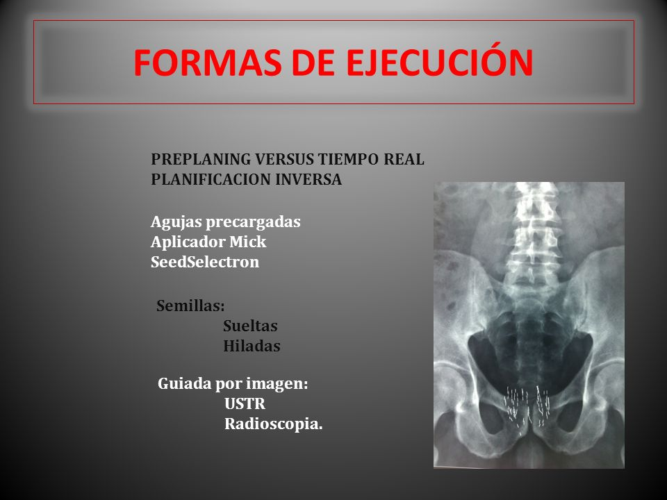 FORMAS DE EJECUCIÓN PREPLANING VERSUS TIEMPO REAL