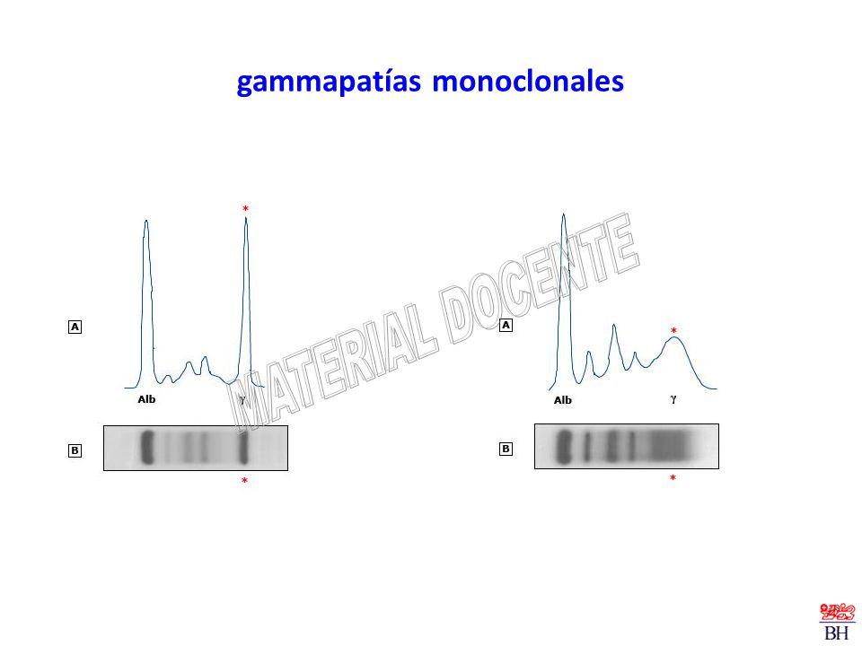 gammapatías monoclonales