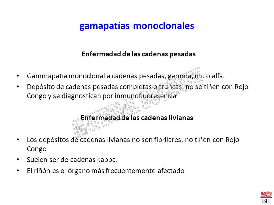 gamapatías monoclonales
