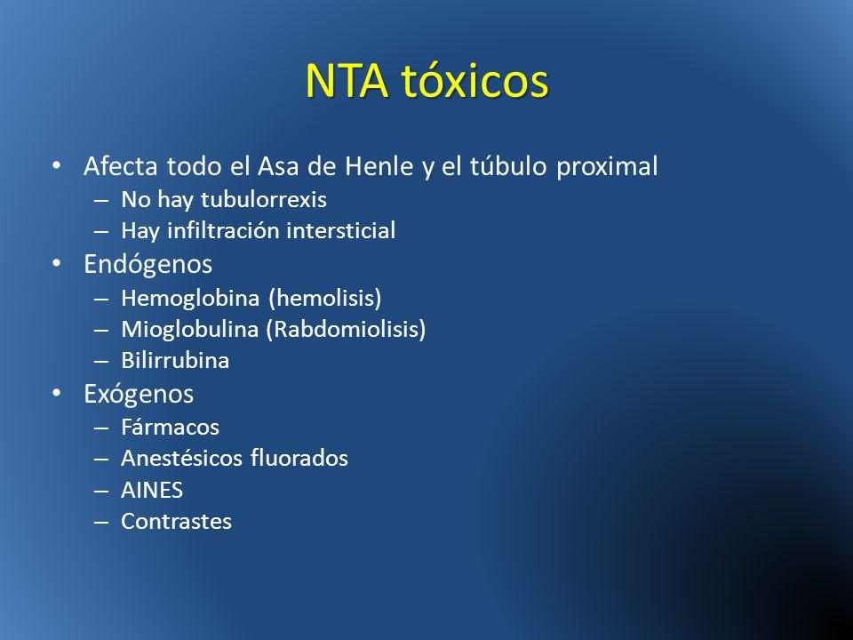 NTA tóxicos Afecta todo el Asa de Henle y el túbulo proximal Endógenos