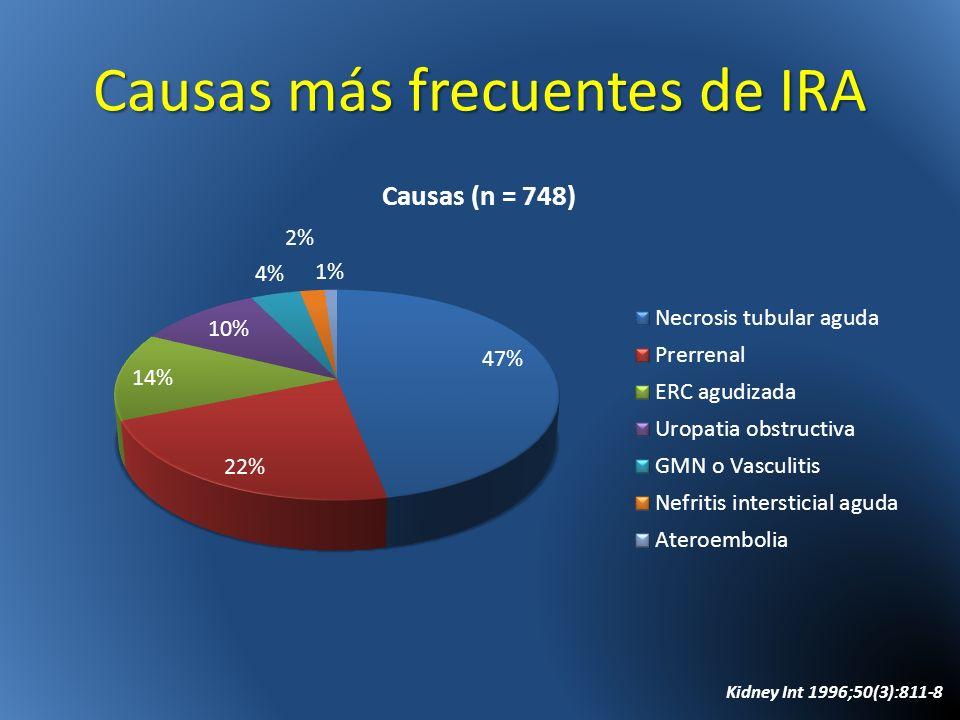 Causas más frecuentes de IRA