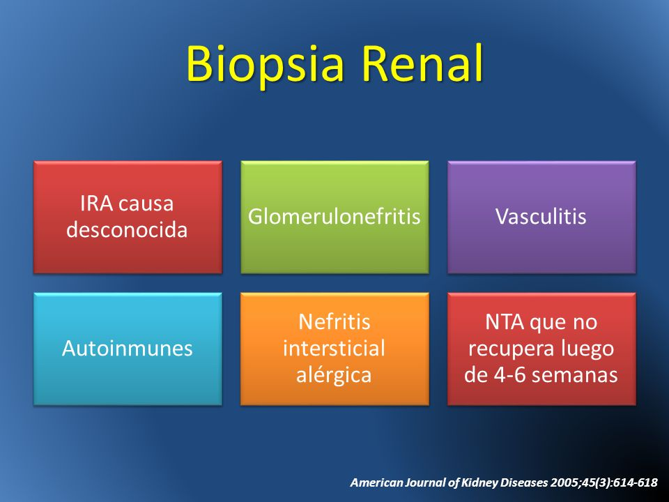 Biopsia Renal IRA causa desconocida Glomerulonefritis Vasculitis