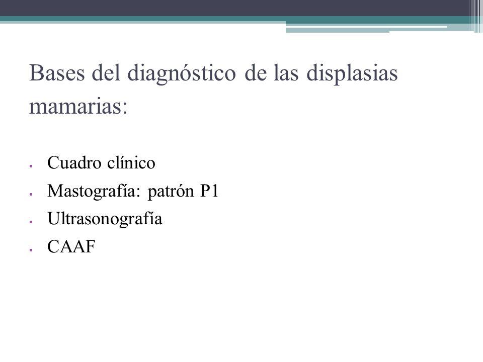 Bases del diagnóstico de las displasias mamarias: