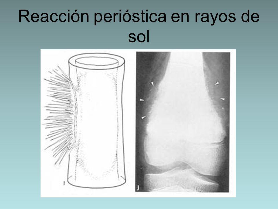 Reacción perióstica en rayos de sol