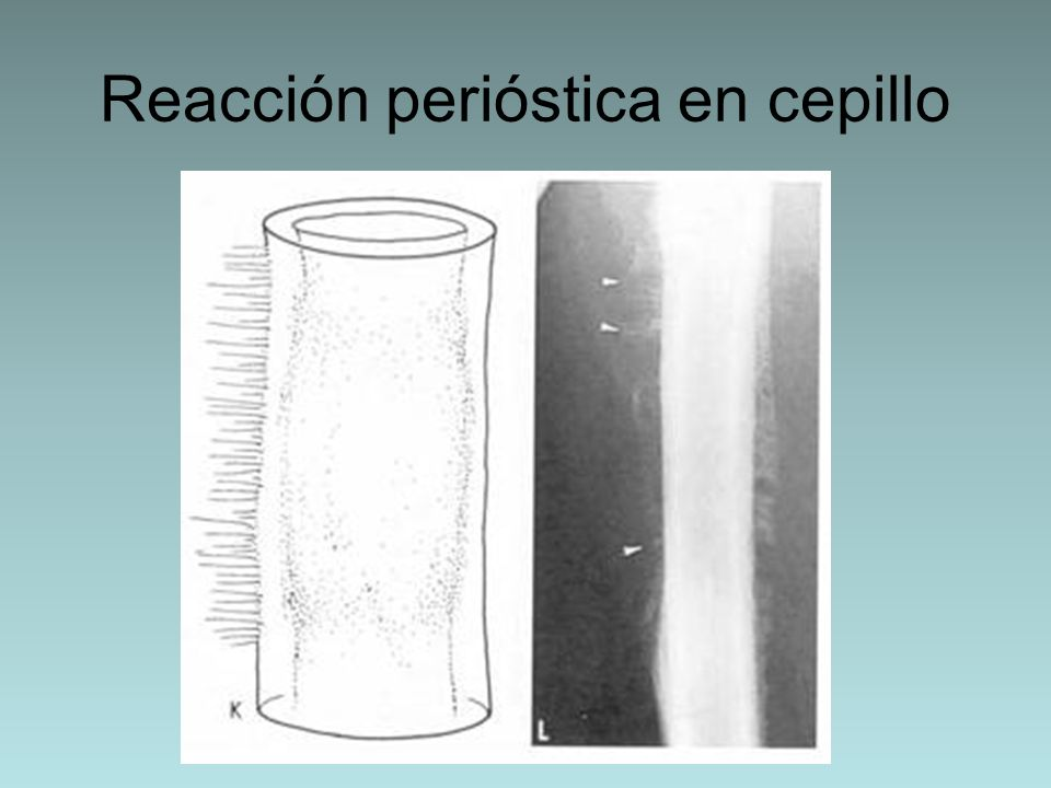 Reacción perióstica en cepillo