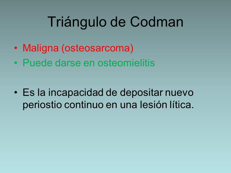 Triángulo de Codman Maligna (osteosarcoma)