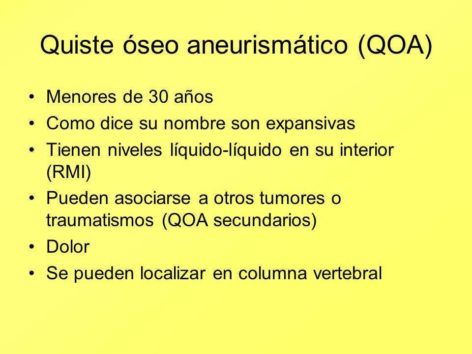 Quiste óseo aneurismático (QOA)