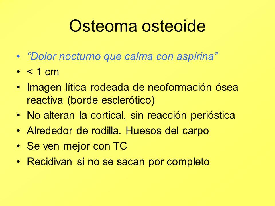 Osteoma osteoide Dolor nocturno que calma con aspirina < 1 cm
