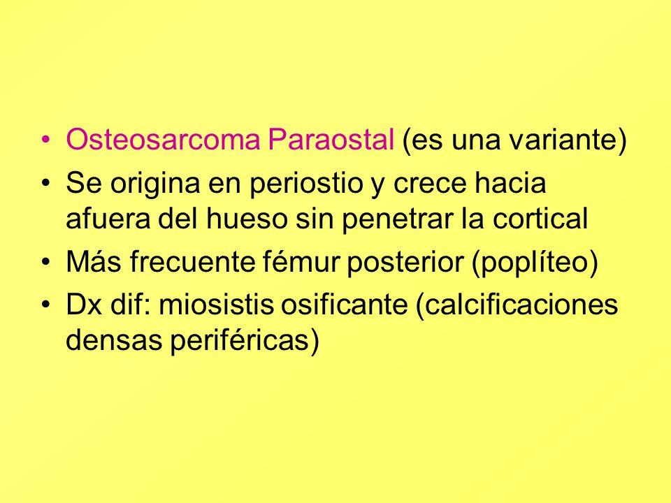 Osteosarcoma Paraostal (es una variante)