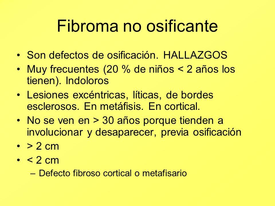 Fibroma no osificante Son defectos de osificación. HALLAZGOS