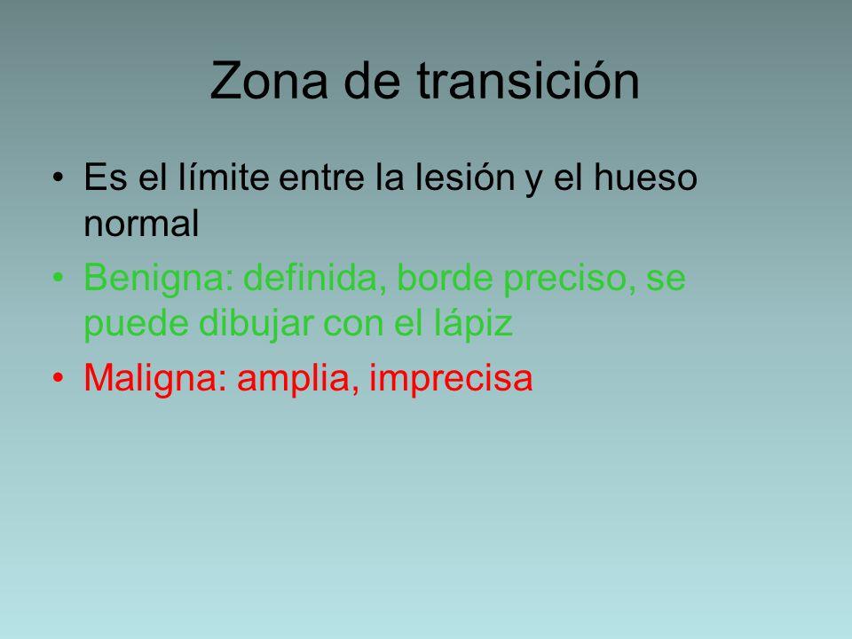 Zona de transición Es el límite entre la lesión y el hueso normal