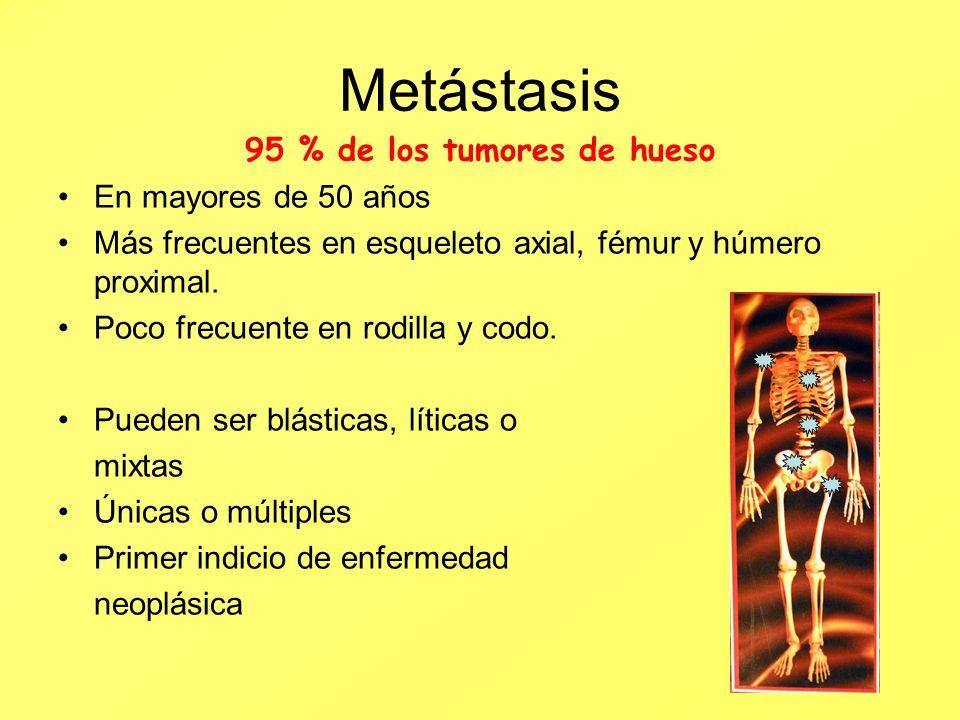95 % de los tumores de hueso