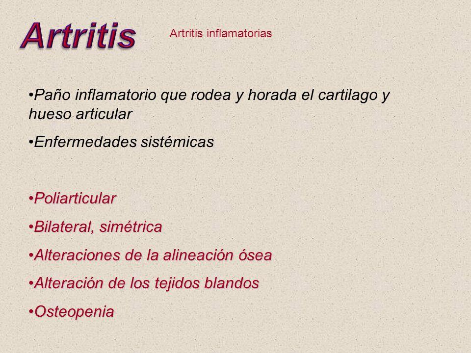 Artritis Artritis inflamatorias. Paño inflamatorio que rodea y horada el cartilago y hueso articular.