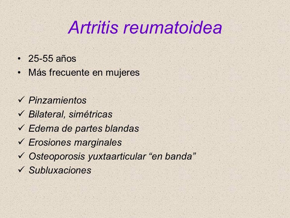 Artritis reumatoidea 25-55 años Más frecuente en mujeres Pinzamientos