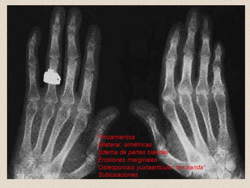 Pinzamientos Bilateral, simétricas. Edema de partes blandas. Erosiones marginales. Osteoporosis yuxtaarticular en banda