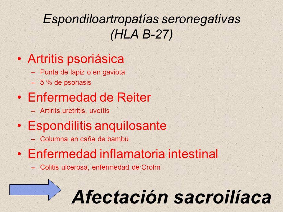 Espondiloartropatías seronegativas (HLA B-27)