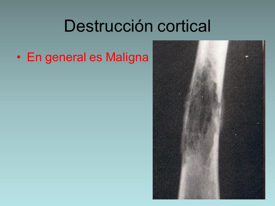 Destrucción cortical En general es Maligna