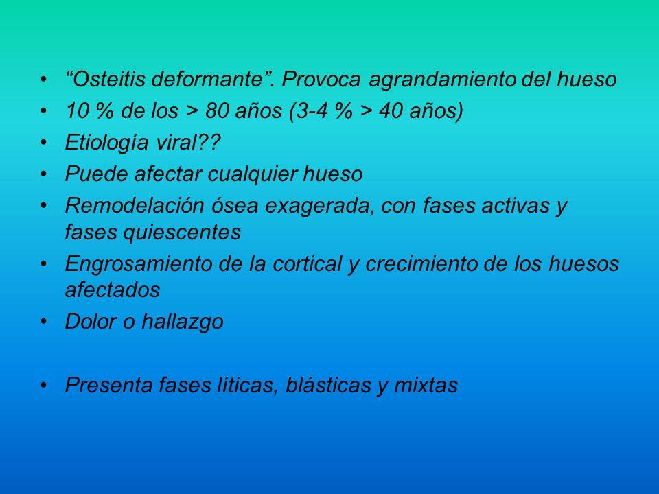 Osteitis deformante . Provoca agrandamiento del hueso