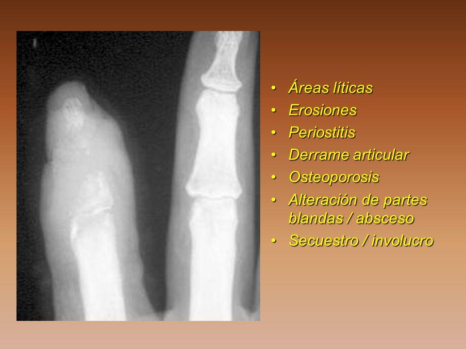 Áreas líticas Erosiones. Periostitis. Derrame articular. Osteoporosis. Alteración de partes blandas / absceso.