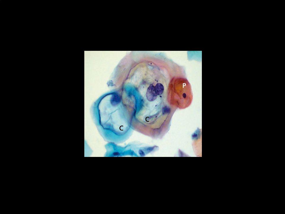 Histopatologia de VPH