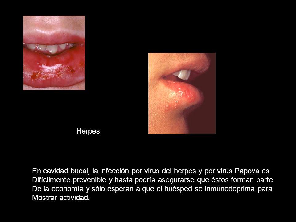 Herpes En cavidad bucal, la infección por virus del herpes y por virus Papova es.