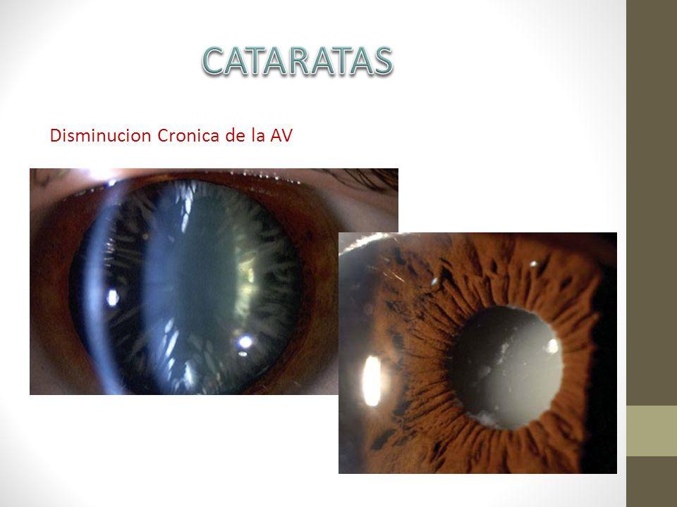 CATARATAS Disminucion Cronica de la AV
