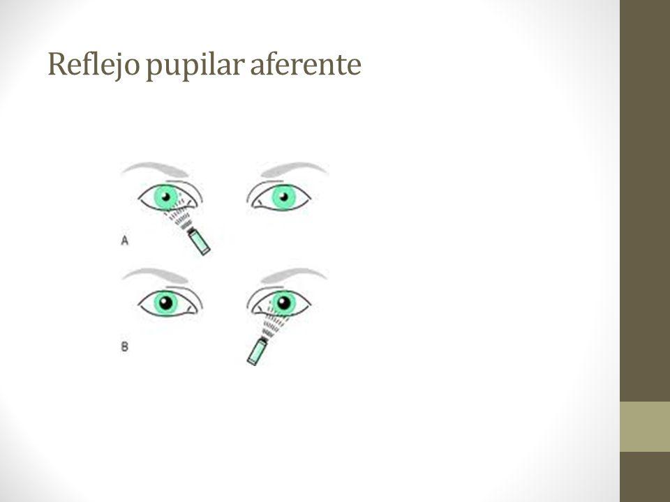 Reflejo pupilar aferente